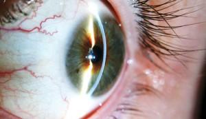 cornea-lampara-hendidura