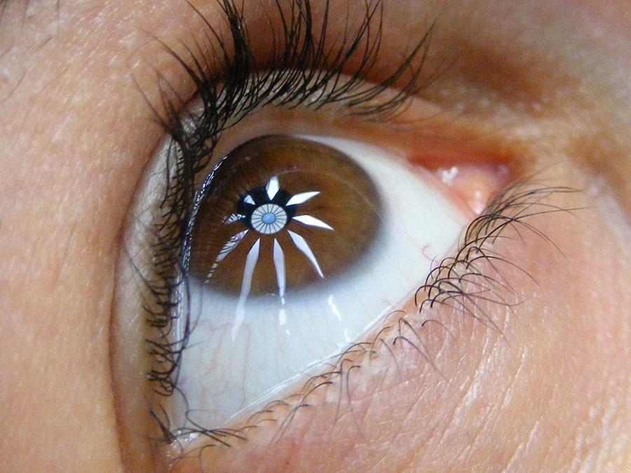 El blanco de los ojos: la esclera • Clínica Rahhal ®
