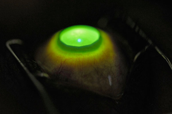 Cross-linking corneal