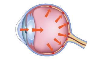 Desarrollo del glaucoma
