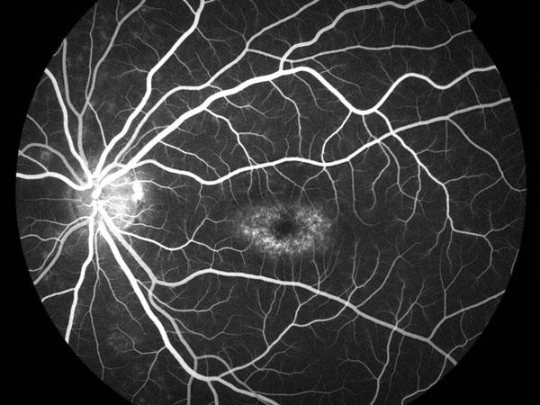 angiografía stargardt