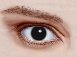 ojo con aniridia