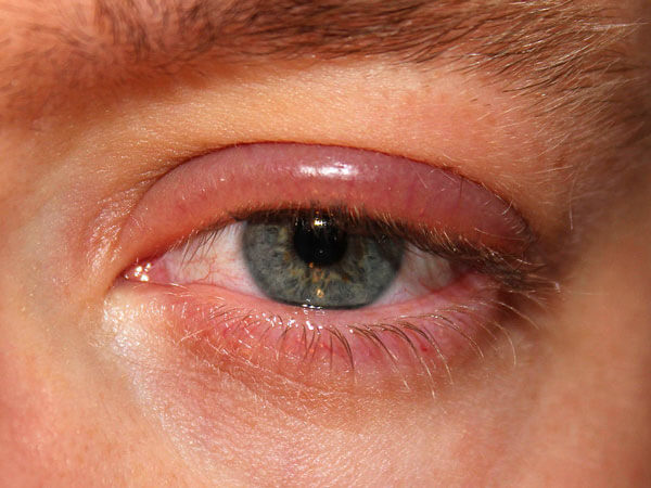bolsas de ojos hinchados después de una cirugía de cataratas