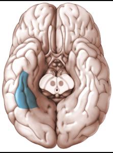 daño cerebral prosopagnosia