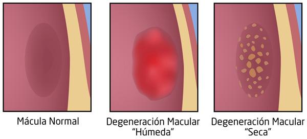 Tipos de degeneración macular