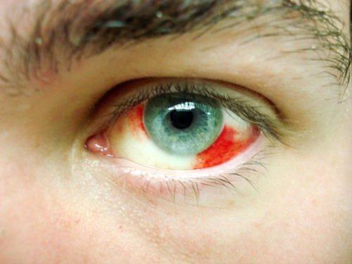Porque no se me ponen rojos los ojos