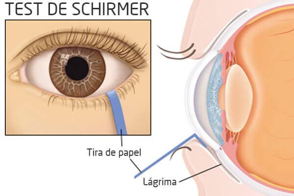 Test Schirmer para ojo seco