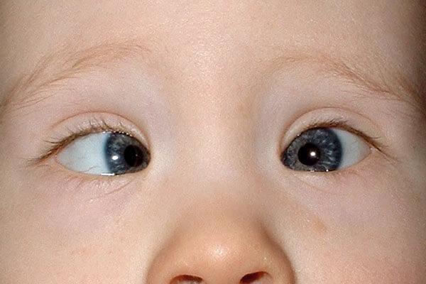Ojos de niño con estrabismo