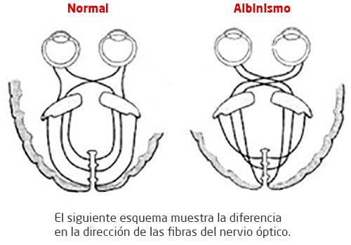 Nervio óptico en albino