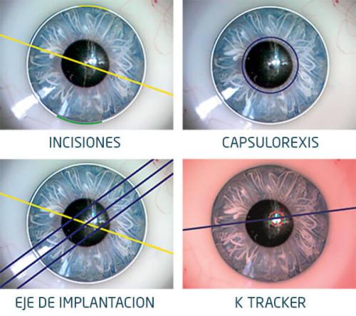 Asistentes Callisto Eye