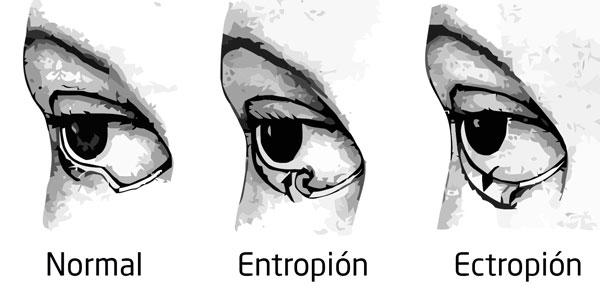 Entropión y Ectropión