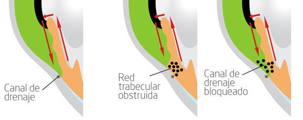 Glaucoma pigmentario, bloqueo canal de drenaje