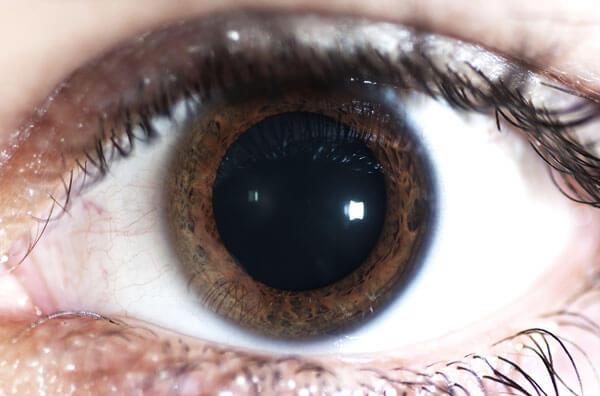 Midriasis pupilar