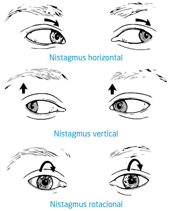 Tipos de movimientos del nistagmus