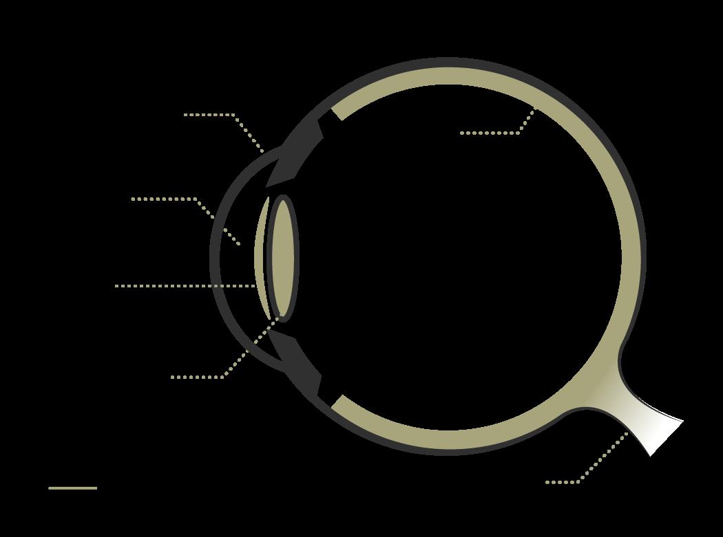 esquema-que-son-lentes-icl